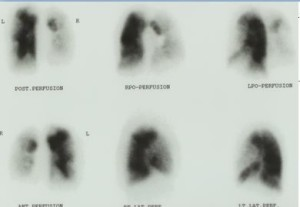 perfusion scan severe pulmonary hypertension CTEPH