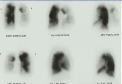 VQ perfusion lung scan severe pulmonary hypertension CTEPH