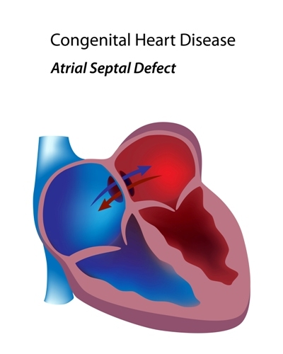 congenital heart disease atrial septal defect