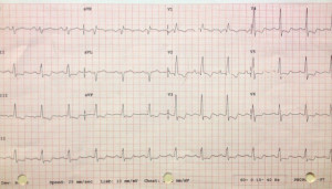 EKG to Diagnose Pulmonary Hypertension