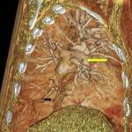 CT Angiogram CTEPH