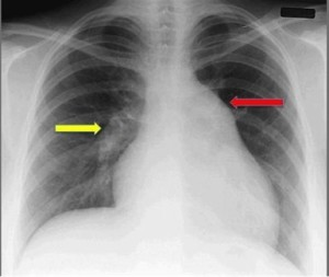 chest x ray severe pah