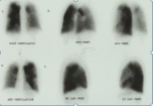 ventilation scan CTEPH