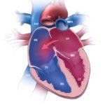 atrial septal defect - pulmonary arterial hypertension