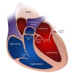 heart valves in pulmonary hypertension